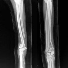 1 - Esame Radiografico