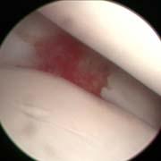 Artroscopia e Chirurgia Mini-Invasiva