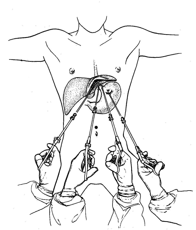 Laparoscopic Nissen Fundoplication