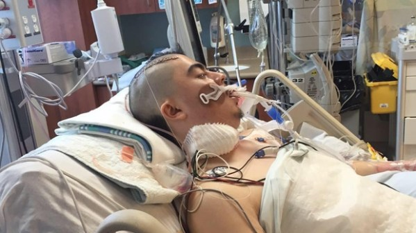 'A bad nightmare': Winnipeger on life support after wisdom ...