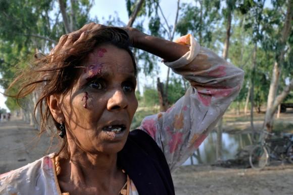 Víctima de las inundaciones, una mujer resulta herida en la cabeza mientras luchaba por los alimentos que se distribuyeron desde un camión en el distrito paquistaní de Muzaffargarh en la provincia de Punjab, el 10 de septiembre 2010. |Foto: Asim Tanveer / Reuters