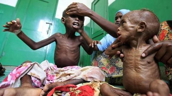 Niños hambrientos somalíes cuidados en un hospital de Mogadiscio. Foto: Reuters