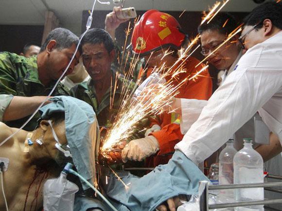 China: Obreros, un bombero y varios médicos unen esfuerzos para cortar la barra de acero que penetró la anatomía de un operario. Foto: REUTERS/China Daily.