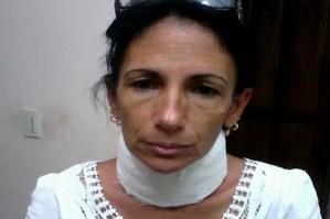 Leticia Ramos Dama de Blanco golpeada por el régimen el pasado domingo 11 en La Habana (foto del autor)