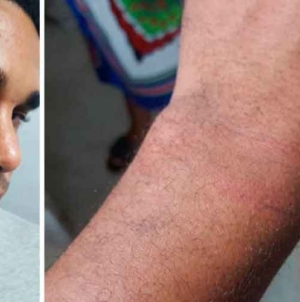 Multado y golpeado: así liberaron a Luis Manuel Otero Alcántara