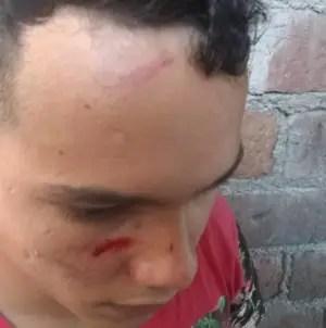 Ante arremetida represiva activistas de UNPACU inician huelga de hambre