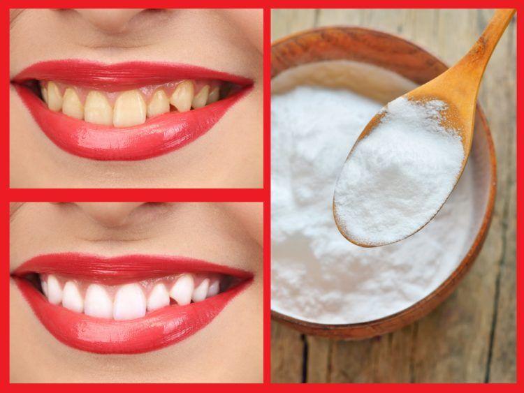 cmo blanquear los dientes con bicarbonato
