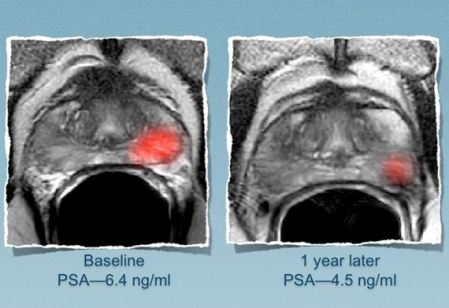 Prostate Tumor Size Before and After Lifestyle Changes: Tumor size is reflected by the red area on the left; the right image was taken after lifestyle changes and reflects a smaller tumor.