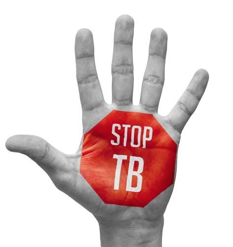 La prueba de la tuberculina