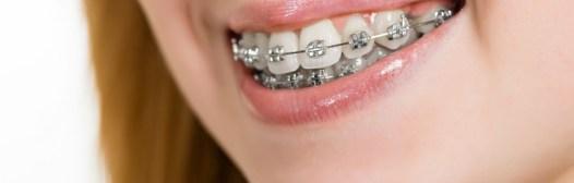 llevar ortodoncia aparato dientes