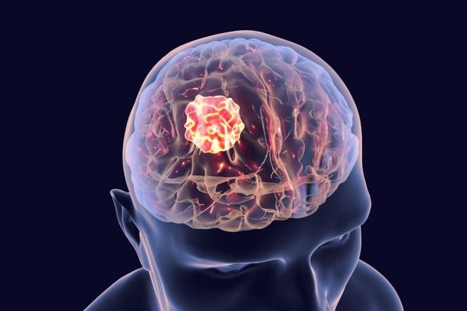 Beyin tümörü nedir, belirtileri nelerdir? 14