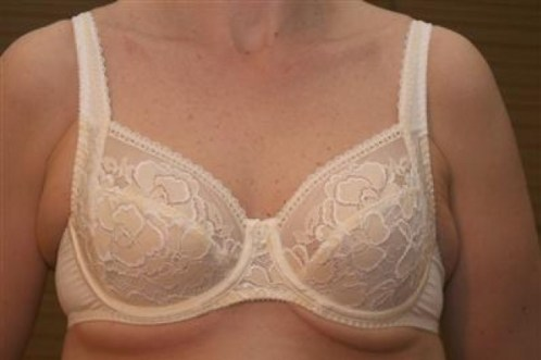bad bra fitting symptoms