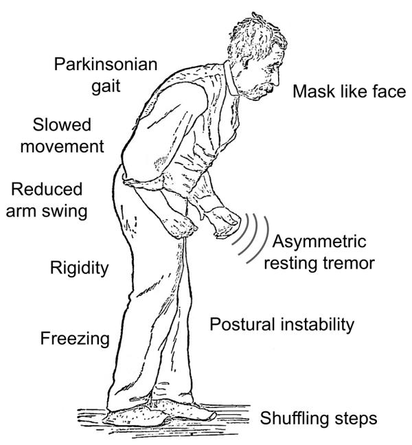 parkinson 1