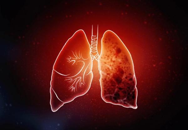 tuberculosis treatment