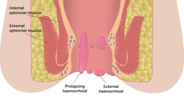 Haemorroids, pile