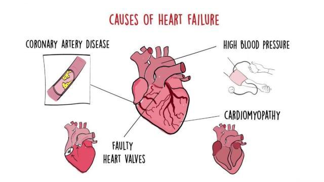heart failure (1)