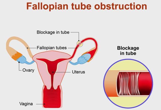 unblock fallopian tube