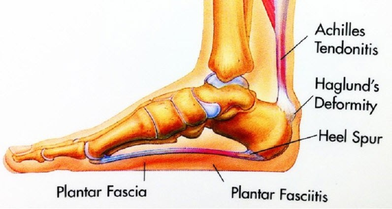 Plantar Fasciitis is just plain painful (Healing the Heel)