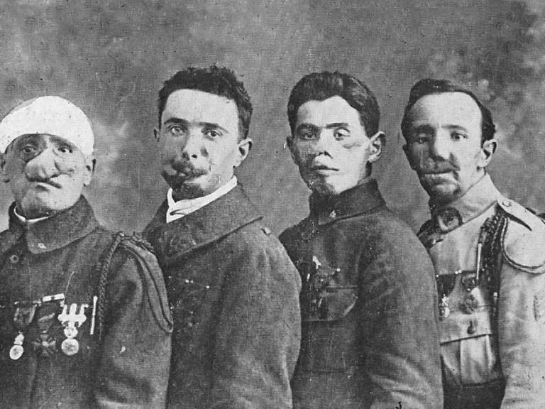 Le cauchemar des « Gueules Cassées, ces «broyés» de la Première Guerre