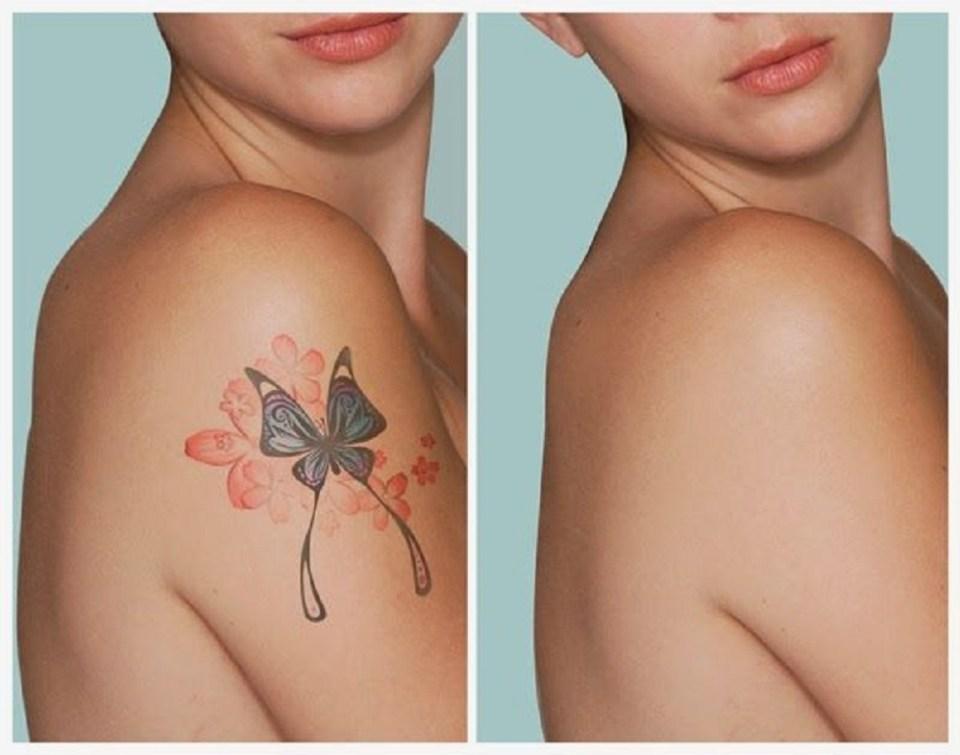 Se necesitan varias sesiones de láser para eliminar un tatuaje