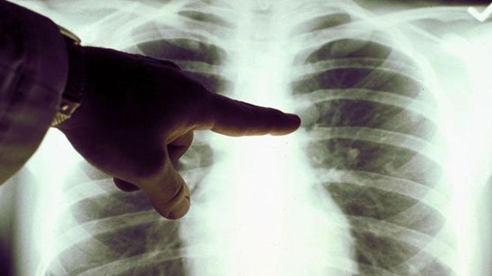 Síntomas del cáncer de pulmón