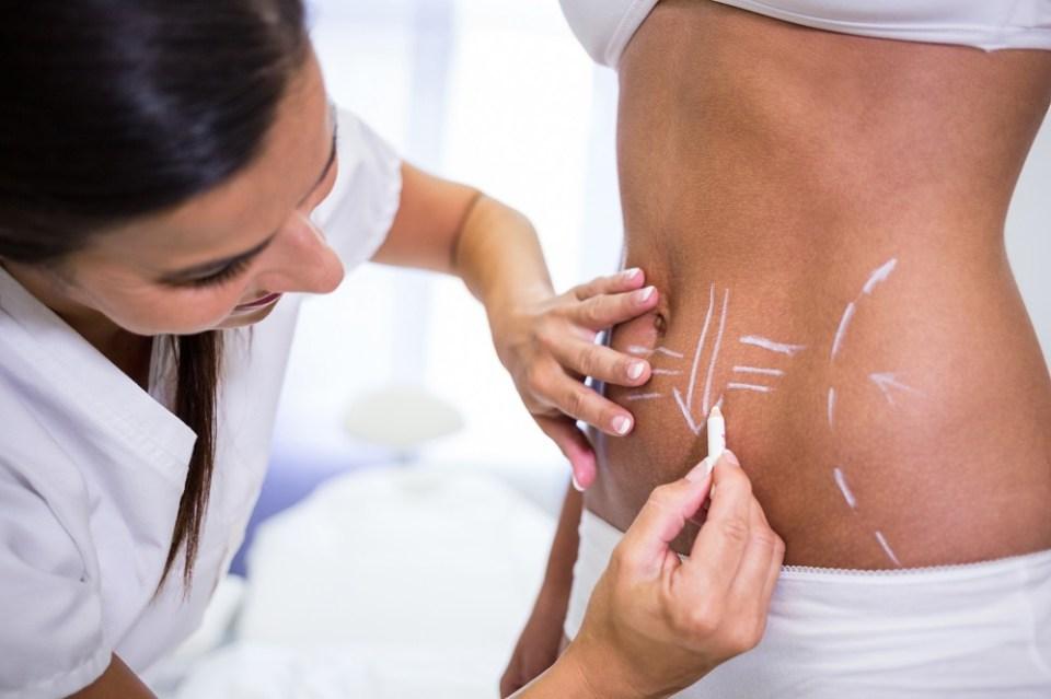 Una de las diferencias entre la liposucción y la abdominoplastia es que esta última solo se hace en el abdomen, mientras que la liposucción puede hacerse en la cara