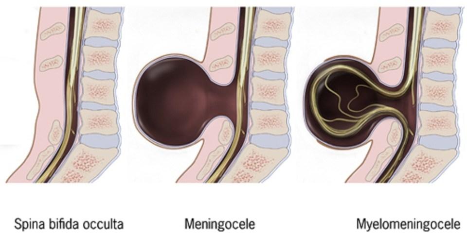 Entre las malformaciones de la columna vertebral,la espina bífida oculta es el más leve