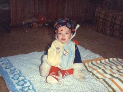 Steven Pete, portador de analgesia congênita. Passou a infância engessado por causa de ferimentos que não sentia.