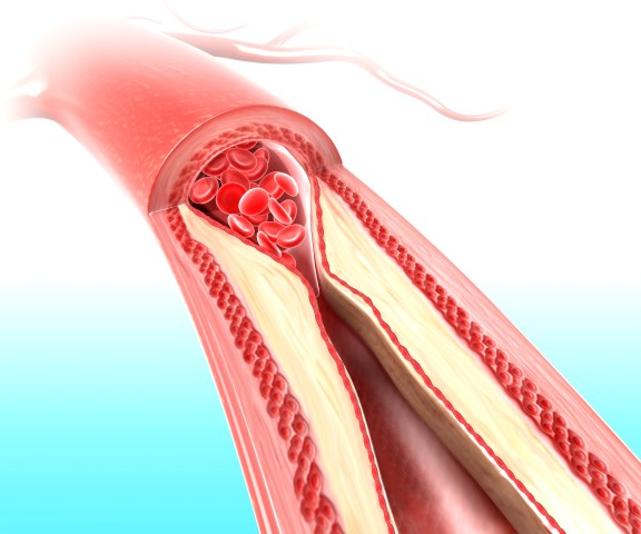 colesterol-ruim[1]