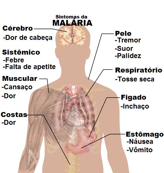 Sintomas_da_Malaria.pt