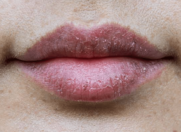 Chapped Lips During Winters