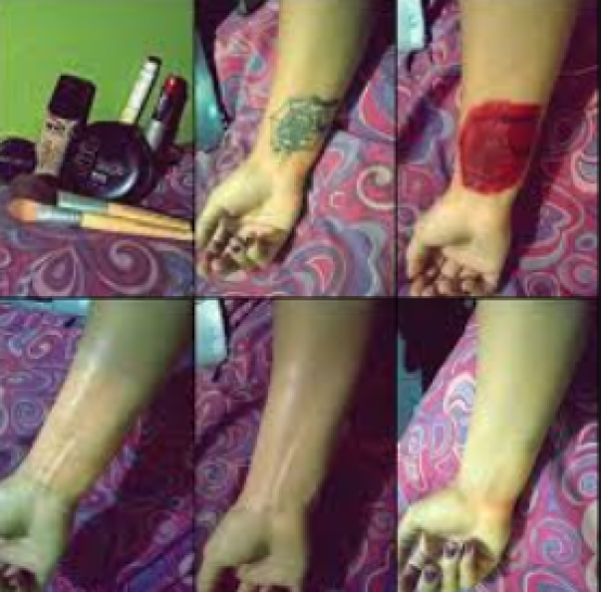 How To Remove Tattoo