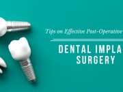 Safety Measures One Should Take After Their Dental Implant Surgery
