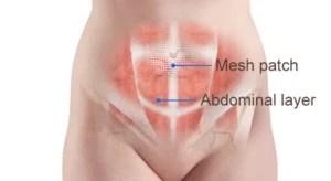 drawing of umbilical hernia repair with mesh