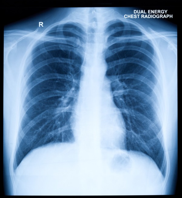 Chest X-Ray | Cardiovascular Medical Group of Southern ...