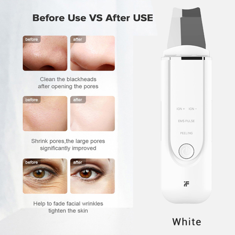 Blackheads remover Xiaomi inFace MS7100-3