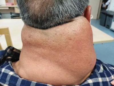耳の下あたりから肩にいたるまで、まるでマフラーを巻いているかのように腫れ上がっている