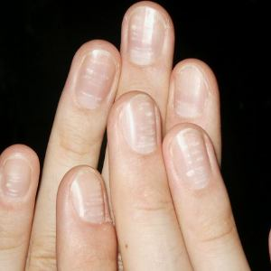 White spots on thumb nail astrology