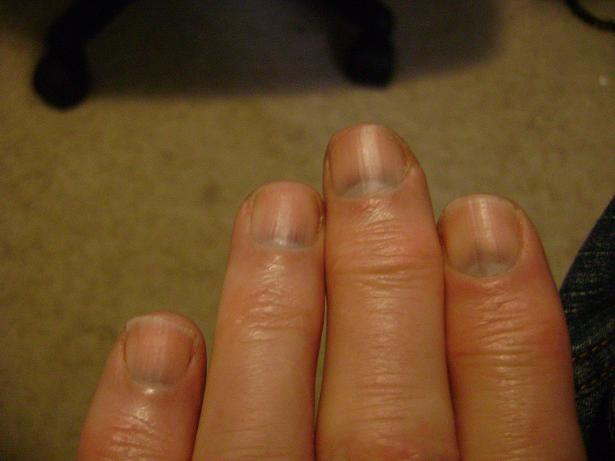 White Spots On Fingernail Beds
