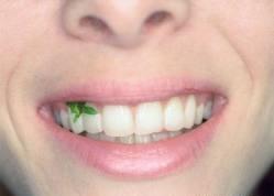 alface no dente