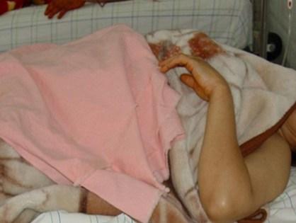 وزارة الصحة: مواد غذائية ملوثة بجرثومة سامة كانت السبب في وفاة أم وابنتها بورززات