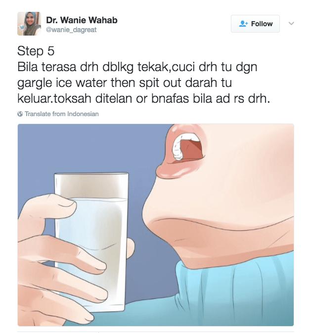 hidung berdarah, cara hentikan pendarahan hidung, first aid hidung berdarah, hidung anak berdarah,
