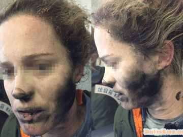 Woman suffered Burns after Headphone Caught Fire During Australia's Flight : See details
