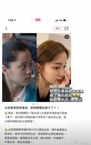 0067MtiAly1gha04craxoj30ab0gedms-189x300 Ouyang Nini Shuts Down Younger Sister Ouyang Nana's Plastic Surgery Rumours