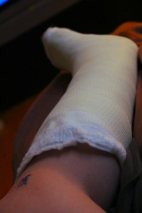 Cast | Severed Achilles
