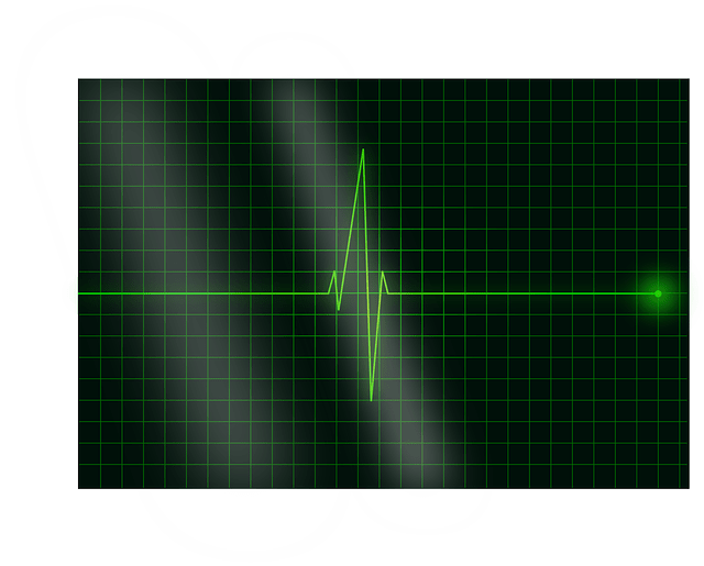 Free vector - heart signal -heartbeat electrocardiogram