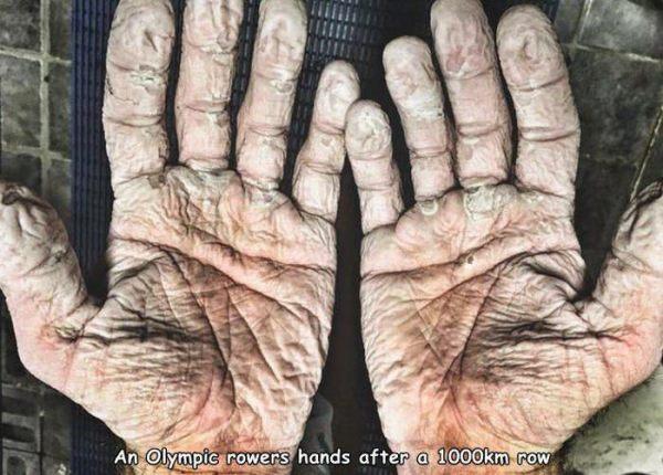 prune hands