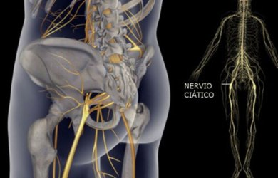 Heal Sciatic Nerve Pain