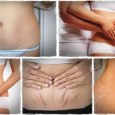 Natural Remedies to Treat Stretch Marks