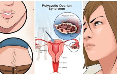 Symptoms of Polycystic Ovary Syndrome